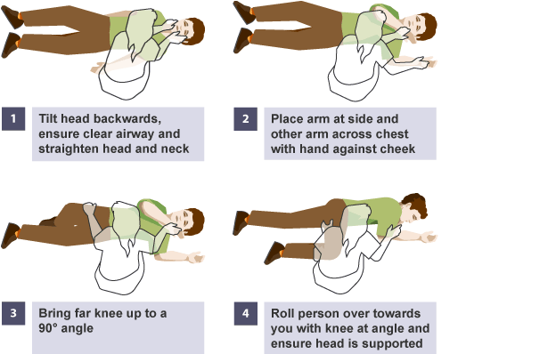 How to put someone into the recovery position – CPR Test